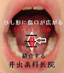 Tonguetie00001